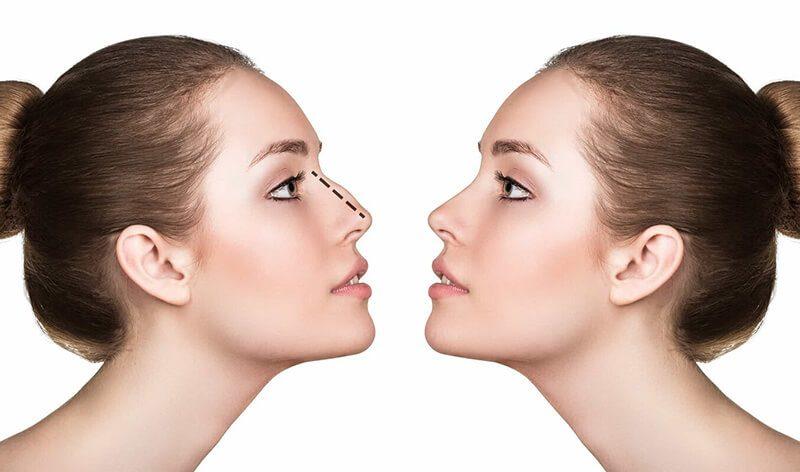 Nâng mũi Hàn Quốc giúp bạn nhanh chóng sở hữu một chiếc mũi cao xinh xắn