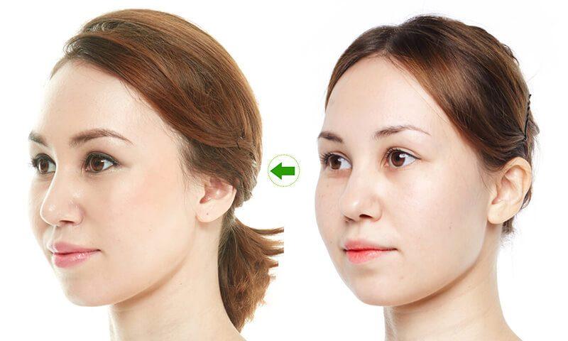 Nâng mũi bằng chỉ không phẫu thuật cũng được nhiều người lựa chọn