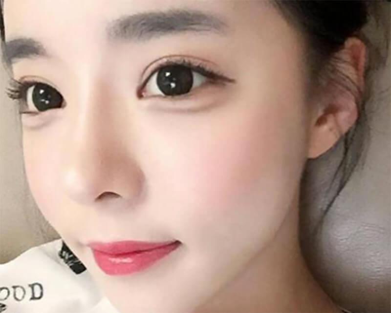 Giải đáp 1001 câu hỏi về nâng mũi bọc sụn cho phái đẹp