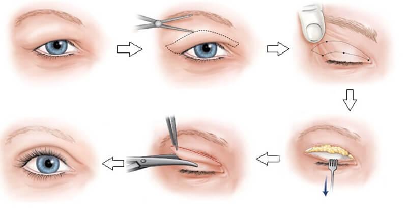 Quy trình cắt mí mắt cho hiệu quả vĩnh viễn vì bạn đã tác động trực tiếp vào vùng da quanh mắt