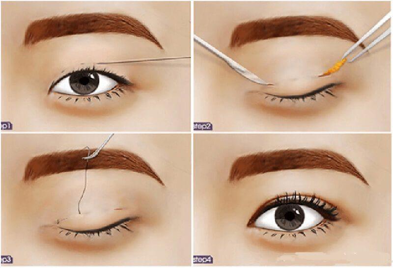 Quy trình nhấn mí mắt được thực hiện nhanh chóng với chi phí thấp và hiệu quả tức thì sau 3- 5 ngày thực hiện