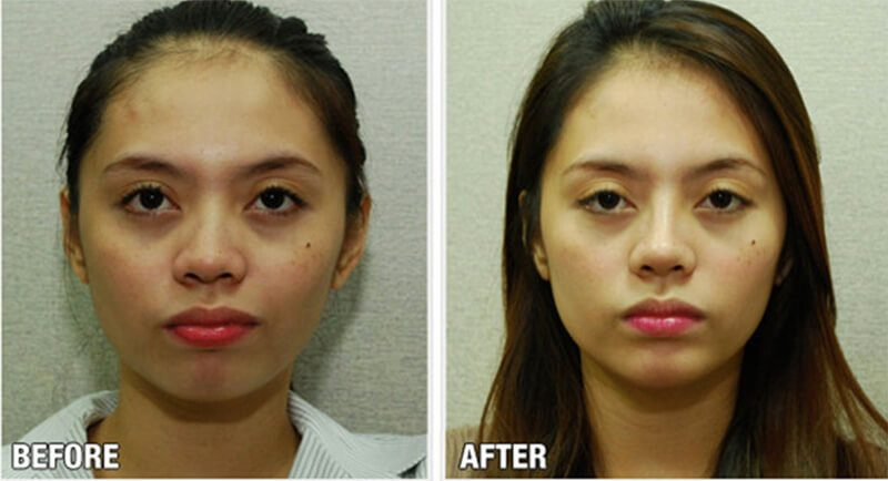 Nhưng thực tế cho thấy, việc nâng mũi có tồn tại vĩnh viễn không còn tùy thuộc vào từng trường hợp cụ thể
