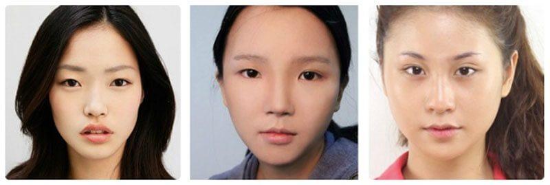 Nhấn mí có cải thiện được kích thước đôi mắt nhỏ?