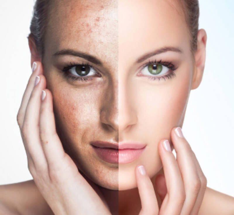 Chữa trị các tổn thương da từ ánh nắng