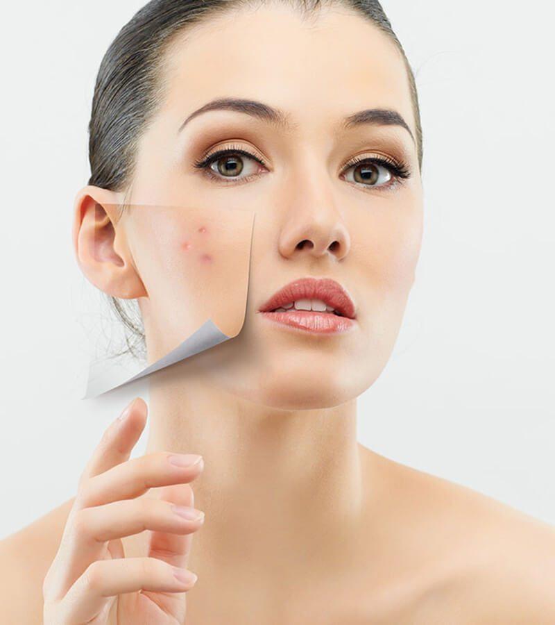10 Cách điều trị hiệu quả tình trạng da khô khi bị mụn
