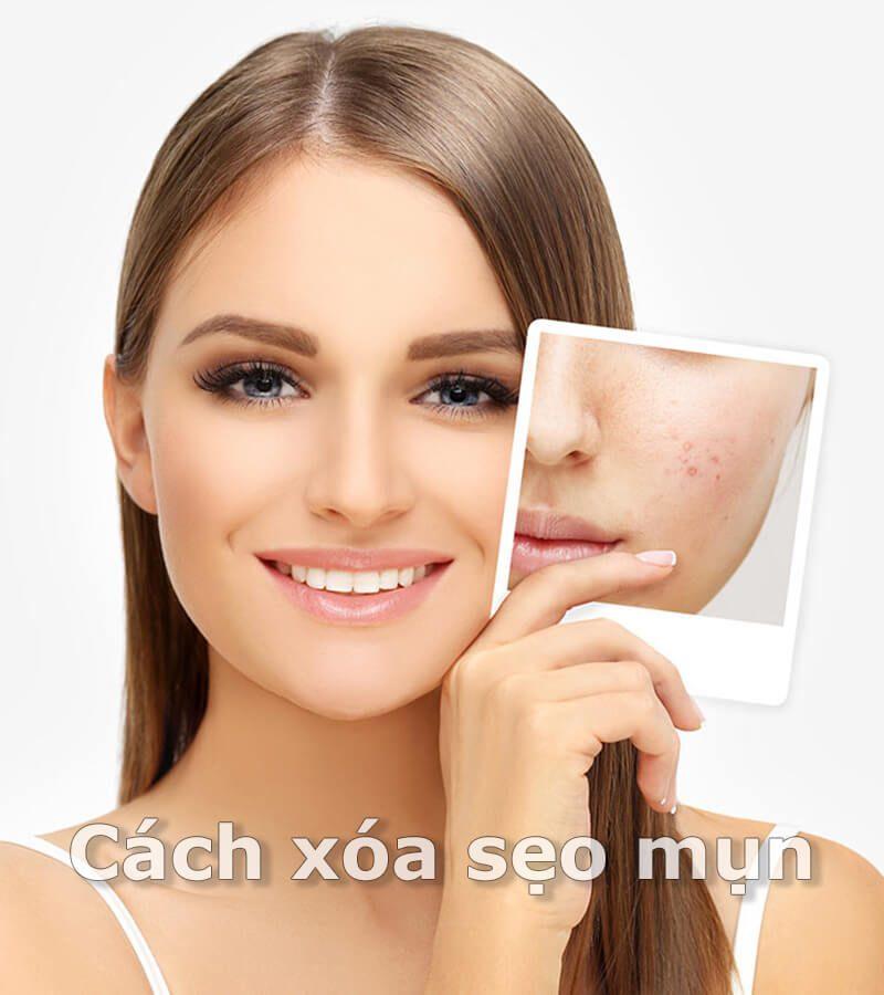 Cách xóa sẹo mụn hiệu quả cho làn da đẹp không tì vết