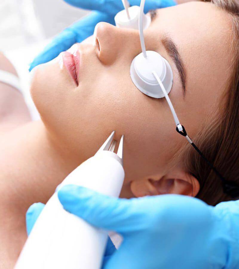 8 Phương pháp điều trị mụn sẹo bằng laser hiệu quả