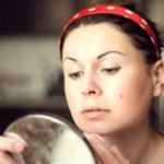 Cách sử dụng dầu mè để điều trị mụn trứng cá