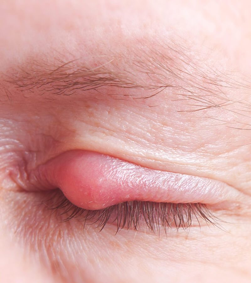 Làm thế nào để trị mụn trên mí mắt?