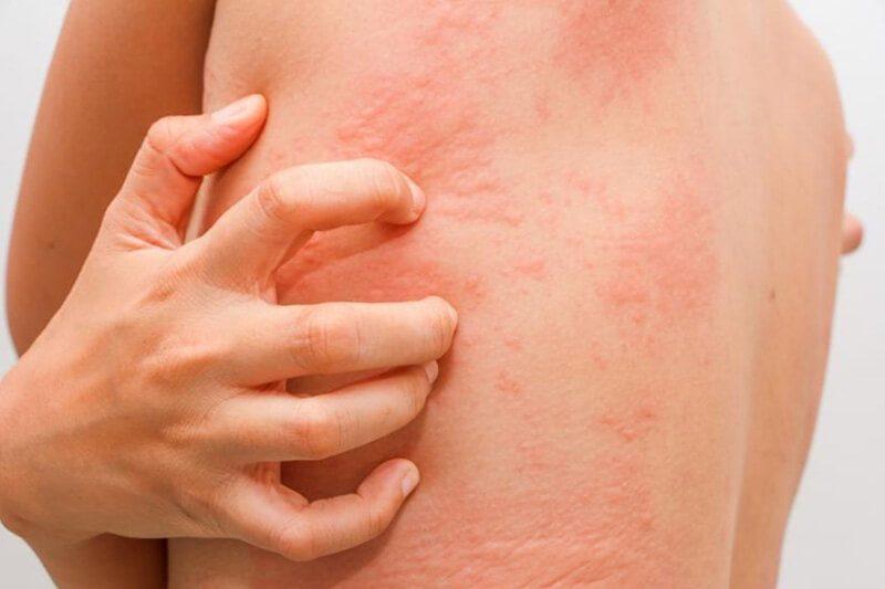 4 bệnh lây nhiễm tình dục không thể chữa khỏi