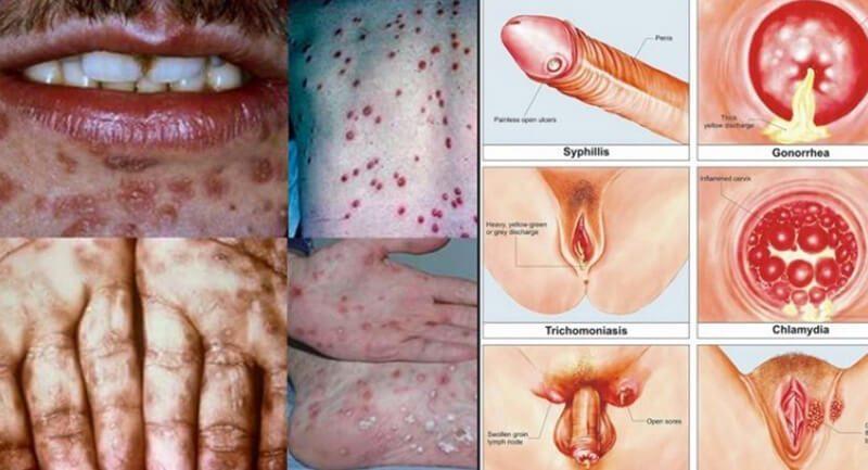Mụn rộp sinh dục: Nguyên nhân, triệu chứng và phương pháp điều trị