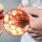 Bệnh Crohn: Nguyên nhân, triệu chứng và phương pháp điều trị