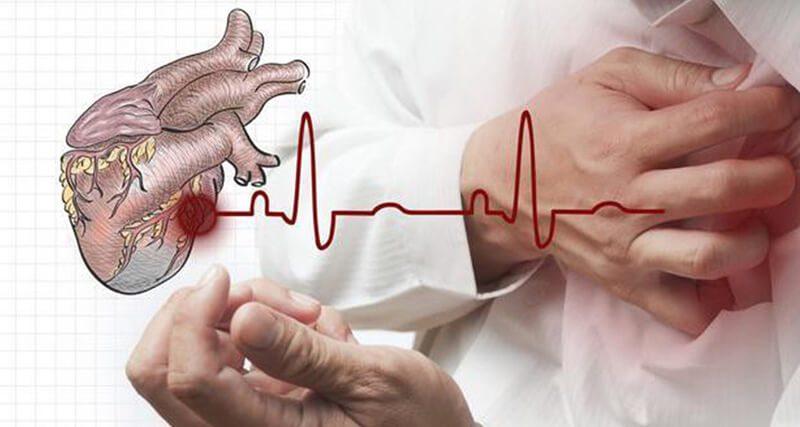 Bệnh tim và những điều bạn cần biết về căn bệnh này