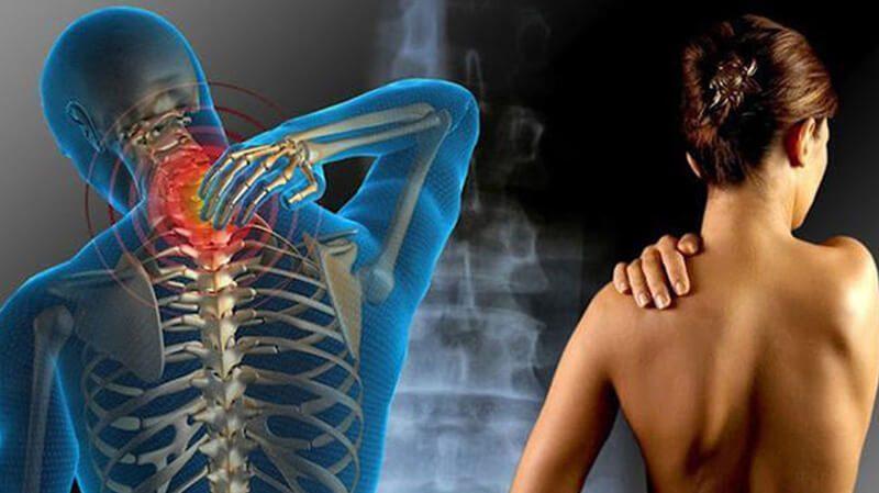 Đau cơ xơ và những điều bạn cần biết về căn bệnh này