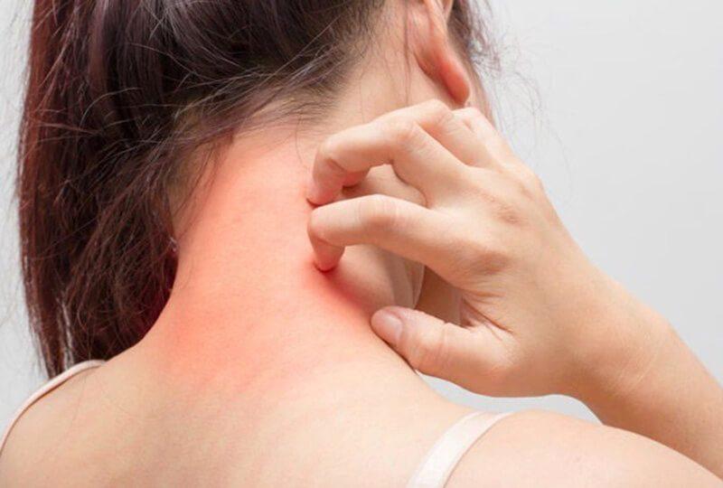Dị ứng: Nguyên nhân, triệu chứng và phương pháp điều trị