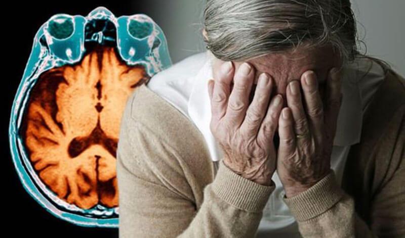 Bệnh mất trí Alzheimer: nguyên nhân, dấu hiệu và cách điều trị