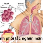 Bệnh phổi tắc nghẽn mãn tính (COPD): nguyên nhân và cách điều trị