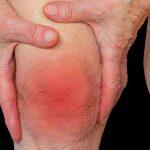 Bệnh thấp khớp: triệu chứng, nguyên nhân và cách điều trị