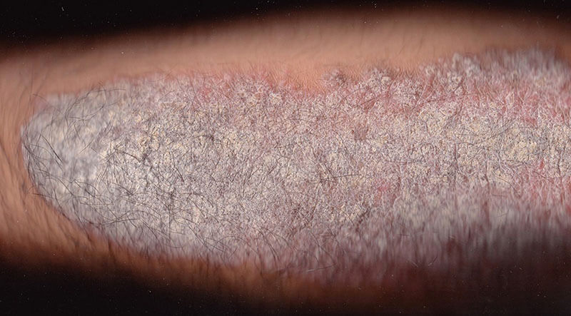 Bệnh vẩy nến Erythrodermic
