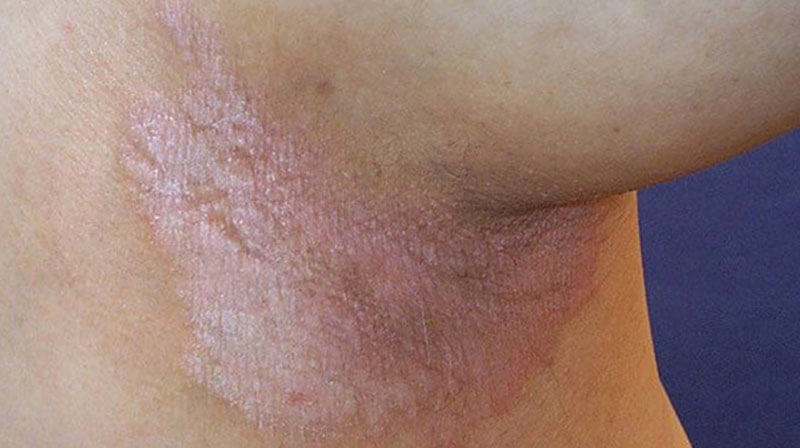 Bệnh vẩy nến ngược