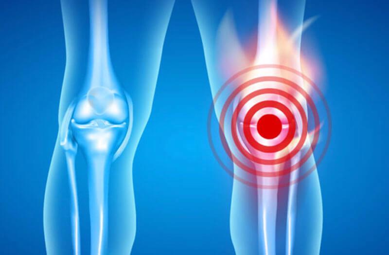 Bệnh viêm xương khớp: nguyên nhân, triệu chứng và cách điều trị