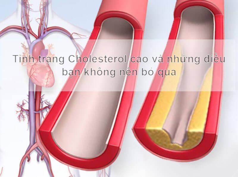 Tình trạng Cholesterol cao và những điều bạn không nên bỏ qua