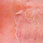 Chứng rối loạn da: triệu chứng, nguyên nhân và cách chữa trị